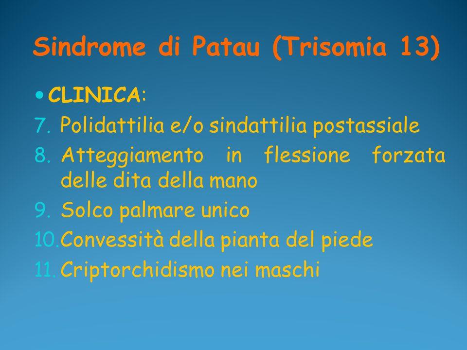 Sindrome di Patau (Trisomia 13) CLINICA: 7. Polidattilia e/o sindattilia postassiale 8. Atteggiamento in flessione forzata delle dita della mano 9. So