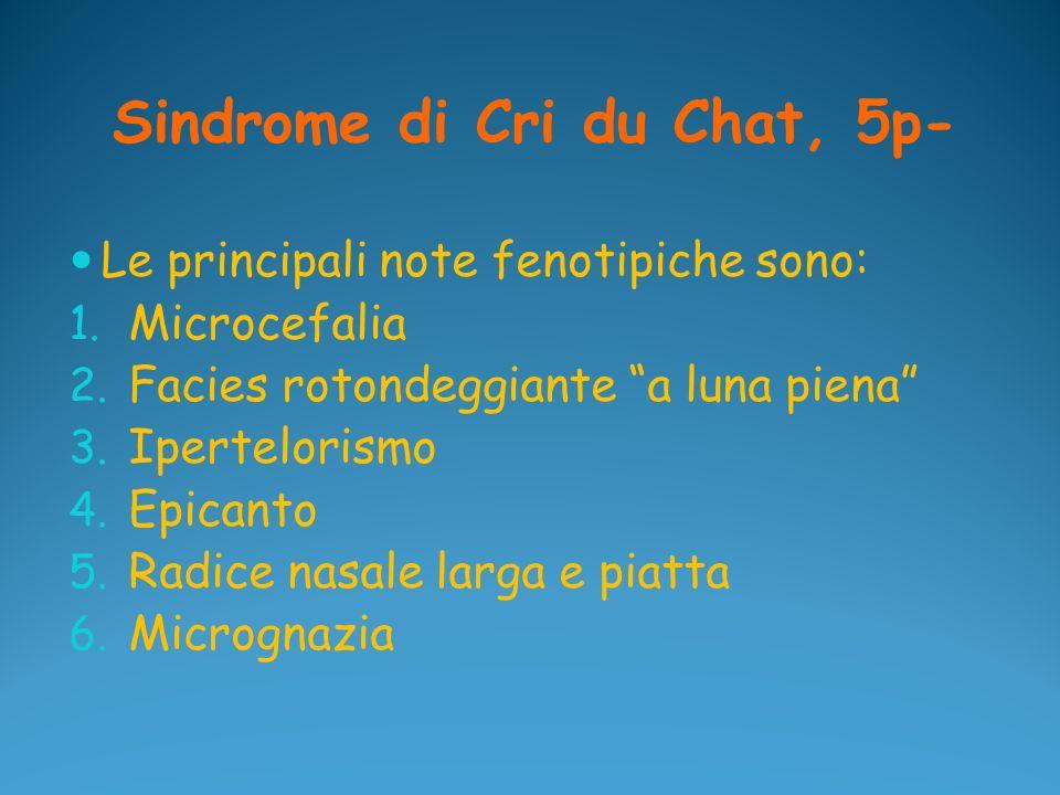 Sindrome di Cri du Chat, 5p- Le principali note fenotipiche sono: 1. Microcefalia 2. Facies rotondeggiante a luna piena 3. Ipertelorismo 4. Epicanto 5