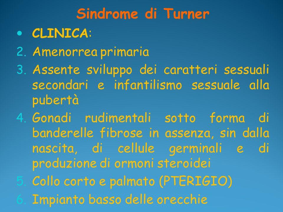 Sindrome di Turner CLINICA: 2. Amenorrea primaria 3. Assente sviluppo dei caratteri sessuali secondari e infantilismo sessuale alla pubertà 4. Gonadi