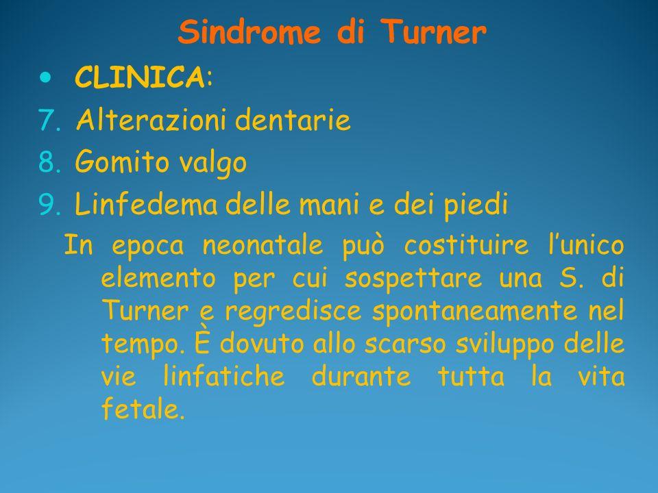 Sindrome di Turner CLINICA: 7. Alterazioni dentarie 8. Gomito valgo 9. Linfedema delle mani e dei piedi In epoca neonatale può costituire lunico eleme