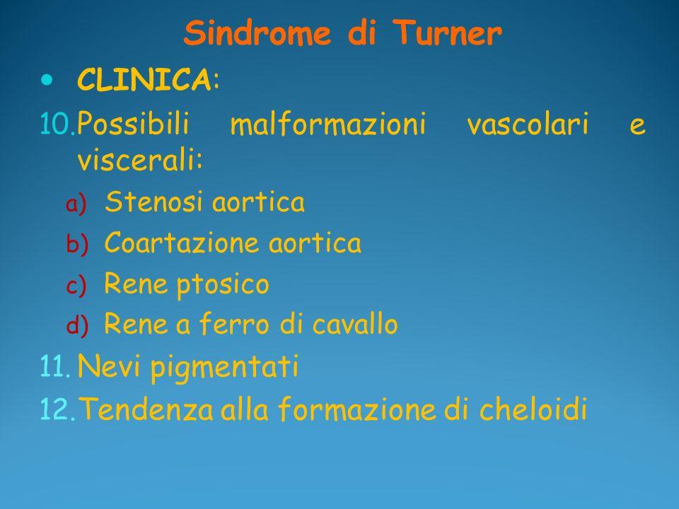 Sindrome di Turner CLINICA: 10. Possibili malformazioni vascolari e viscerali: a) Stenosi aortica b) Coartazione aortica c) Rene ptosico d) Rene a fer