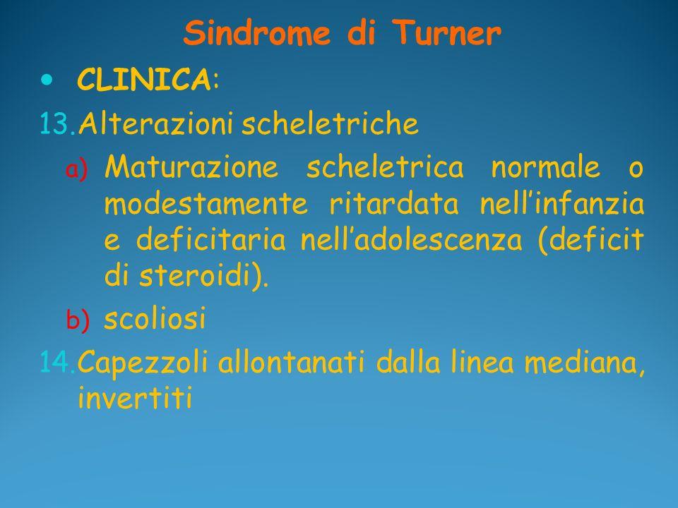 Sindrome di Turner CLINICA: 13. Alterazioni scheletriche a) Maturazione scheletrica normale o modestamente ritardata nellinfanzia e deficitaria nellad