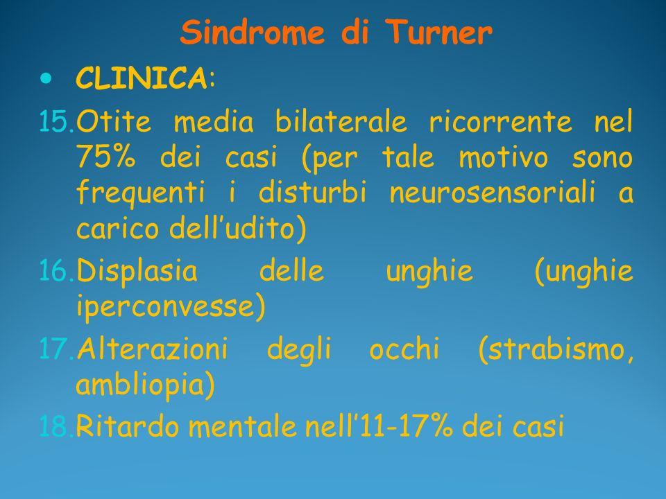 Sindrome di Turner CLINICA: 15. Otite media bilaterale ricorrente nel 75% dei casi (per tale motivo sono frequenti i disturbi neurosensoriali a carico