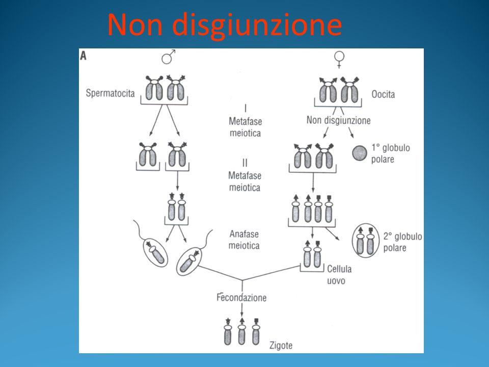 Aberrazioni cromosomiche strutturali CROMOSOMA AD ANELLO Si verifica quando si ha la perdita delle due regioni terminali e la chiusura ad anello della regione intermedia.