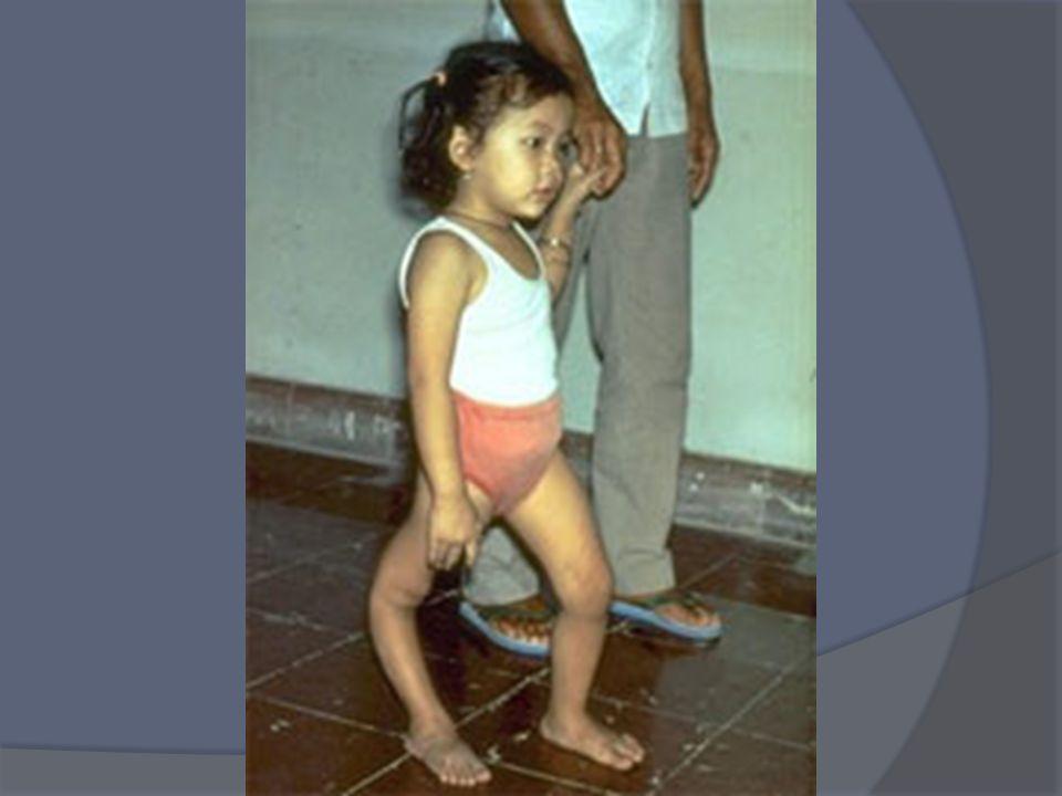 Nel 1998 lOMS ha dichiarato lItalia polio-free Dal 1999 nella scheda vaccinale la 1° e la 2° dose il polio Sabin (OPV vaccino a virus vivo) è stato so