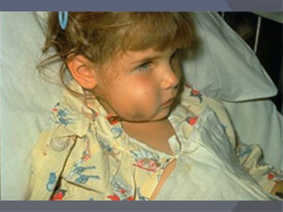 Vaccinazione anti Haemophilus Influenzae di tipo B (Hib) LHaemophlilus B può causare malattie gravi nei primi 5 anni di vita: meningiti, sepsi, epiglo