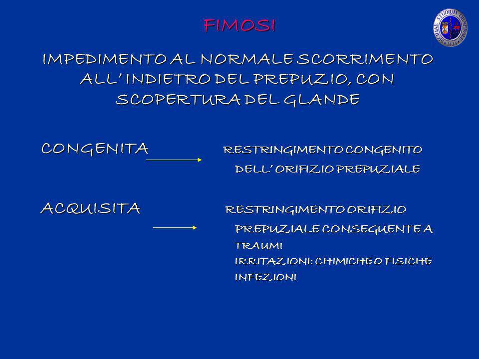 FIMOSI IMPEDIMENTO AL NORMALE SCORRIMENTO ALL INDIETRO DEL PREPUZIO, CON SCOPERTURA DEL GLANDE CONGENITA RESTRINGIMENTO CONGENITO DELL ORIFIZIO PREPUZ