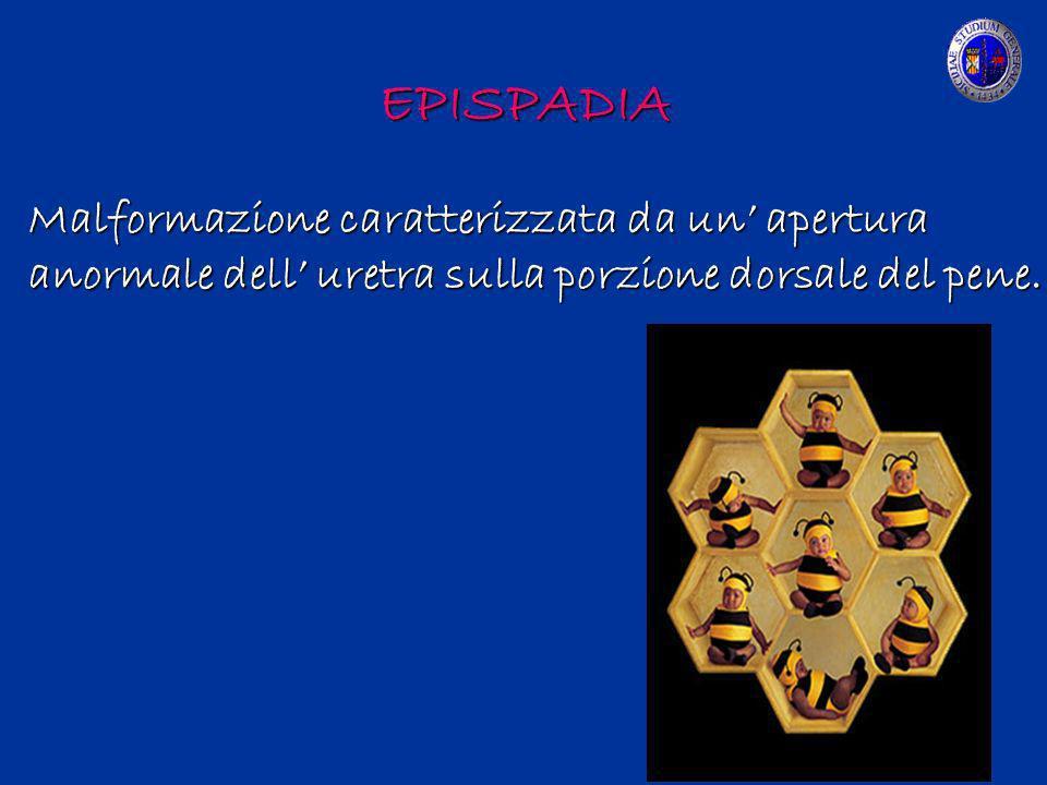 EPISPADIA Malformazione caratterizzata da un apertura anormale dell uretra sulla porzione dorsale del pene.