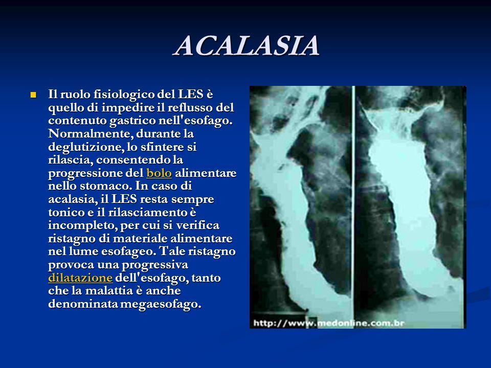 ACALASIA Il ruolo fisiologico del LES è quello di impedire il reflusso del contenuto gastrico nell'esofago. Normalmente, durante la deglutizione, lo s