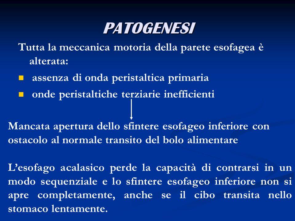 Miotomia miotomia laparotomica miotomia laparoscopica
