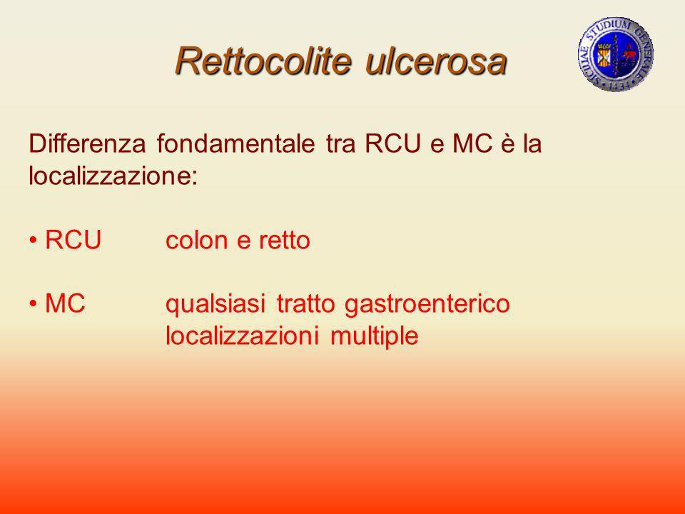 Rettocolite ulcerosa Differenza fondamentale tra RCU e MC è la localizzazione: RCUcolon e retto MCqualsiasi tratto gastroenterico localizzazioni multi