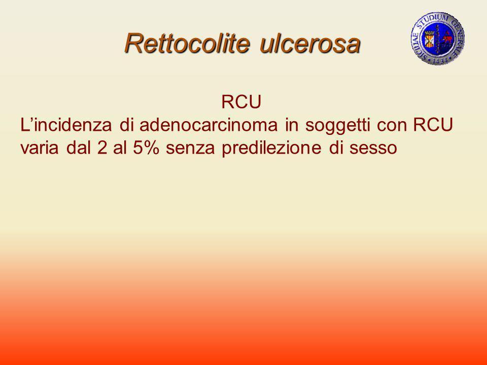 Rettocolite ulcerosa RCU Lincidenza di adenocarcinoma in soggetti con RCU varia dal 2 al 5% senza predilezione di sesso