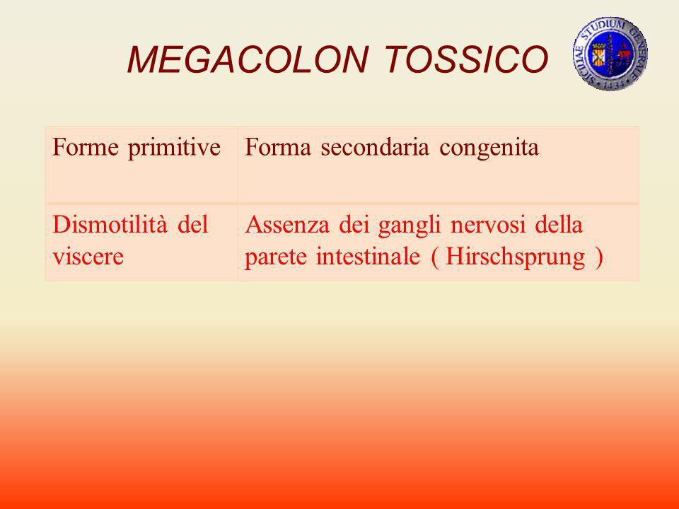 MEGACOLON TOSSICO Forme primitiveForma secondaria congenita Dismotilità del viscere Assenza dei gangli nervosi della parete intestinale ( Hirschsprung