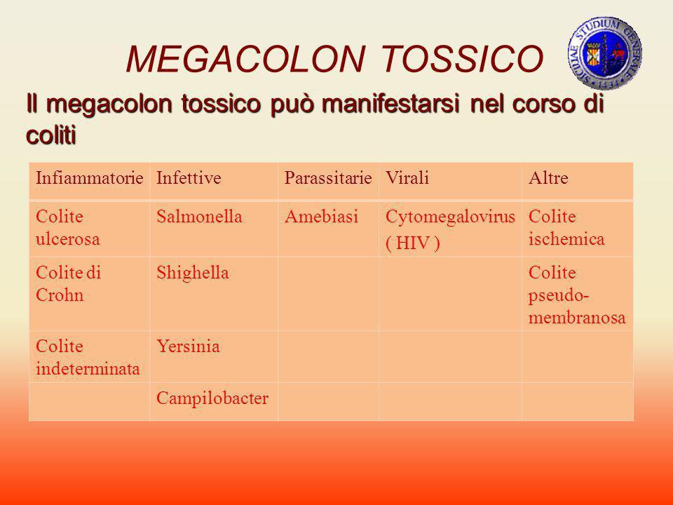 MEGACOLON TOSSICO Il megacolon tossico può manifestarsi nel corso di coliti InfiammatorieInfettiveParassitarieViraliAltre Colite ulcerosa SalmonellaAm