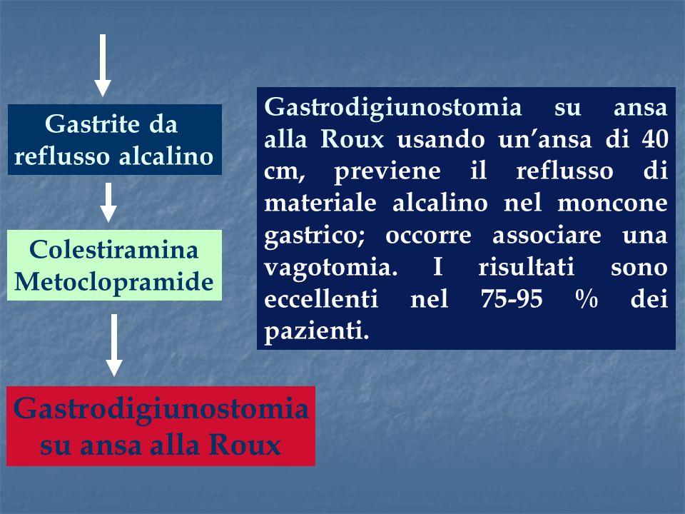 Gastrite da reflusso alcalino Gastrodigiunostomia su ansa alla Roux usando unansa di 40 cm, previene il reflusso di materiale alcalino nel moncone gas