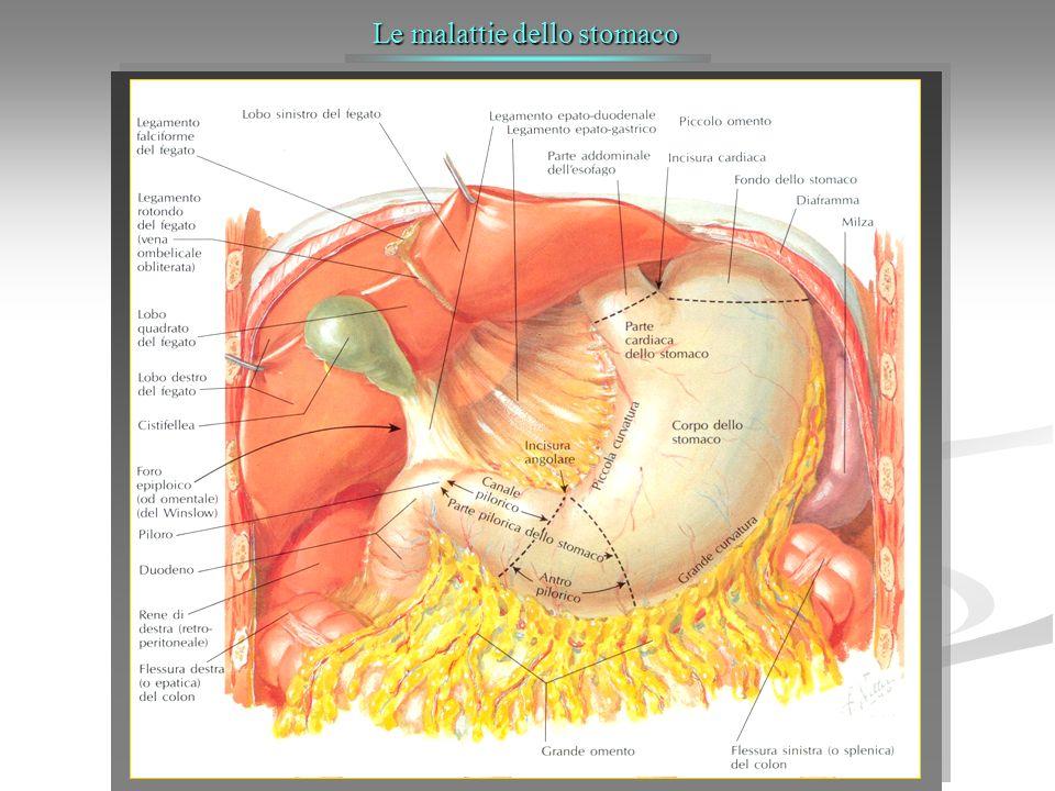 Ulcera recidiva Vagotomia e/o resezione gastrica La vagotomia associata ad antrectomia è generalmente indicata per il trattamento delle ulcere recidivanti.