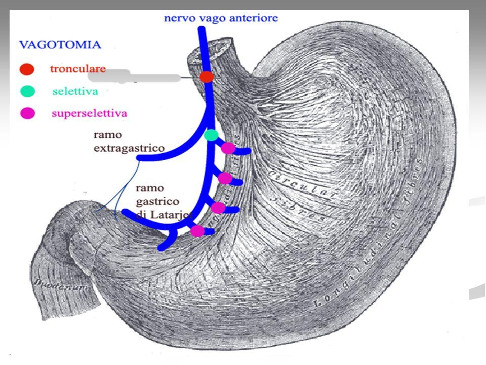 Dumping La dumping syndrome deriva da un alterato svuotamento gastrico secondario a resezione, asportazione o bypass dello sfintere pilorico.