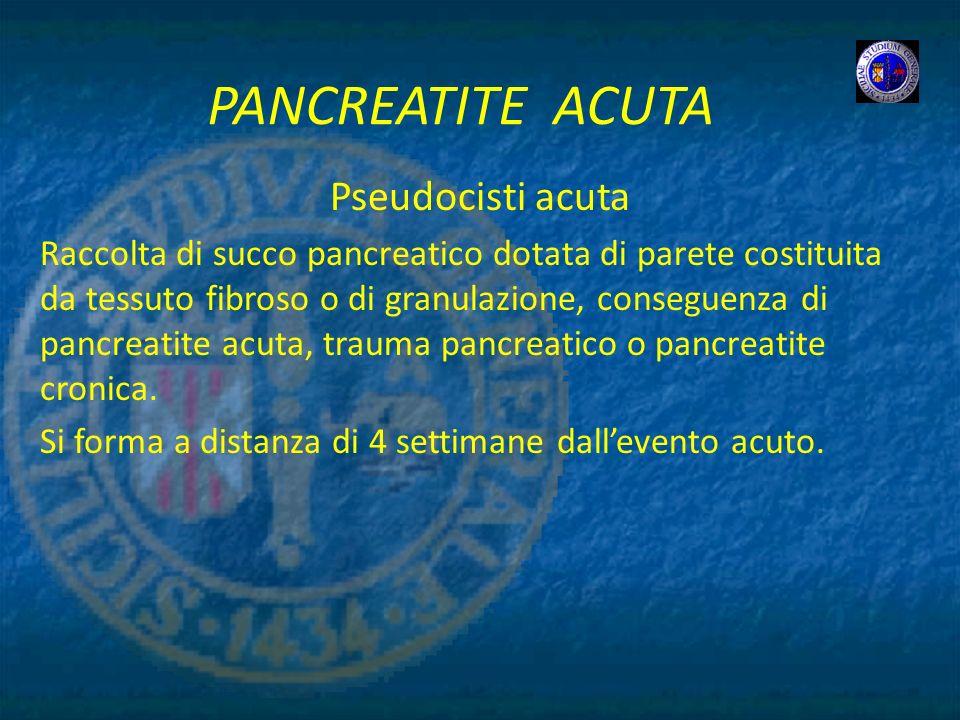 PANCREATITE ACUTA Pseudocisti acuta Raccolta di succo pancreatico dotata di parete costituita da tessuto fibroso o di granulazione, conseguenza di pan