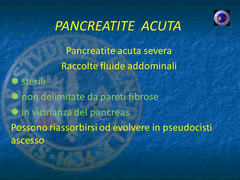PANCREATITE ACUTA Pancreatite acuta severa Raccolte fluide addominali sterili non delimitate da pareti fibrose in vicinanza del pancreas Possono riass