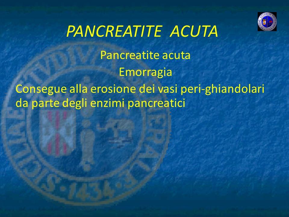 PANCREATITE ACUTA Pancreatite acuta Emorragia Consegue alla erosione dei vasi peri-ghiandolari da parte degli enzimi pancreatici