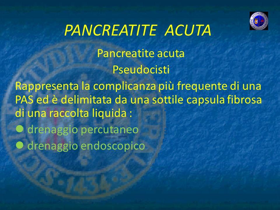PANCREATITE ACUTA Pancreatite acuta Pseudocisti Rappresenta la complicanza più frequente di una PAS ed è delimitata da una sottile capsula fibrosa di