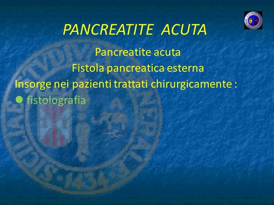 PANCREATITE ACUTA Pancreatite acuta Fistola pancreatica esterna Insorge nei pazienti trattati chirurgicamente : fistolografia