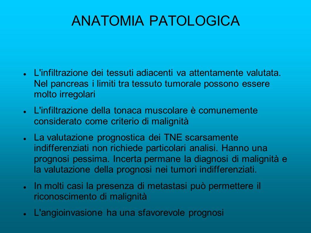ANATOMIA PATOLOGICA L'infiltrazione dei tessuti adiacenti va attentamente valutata. Nel pancreas i limiti tra tessuto tumorale possono essere molto ir