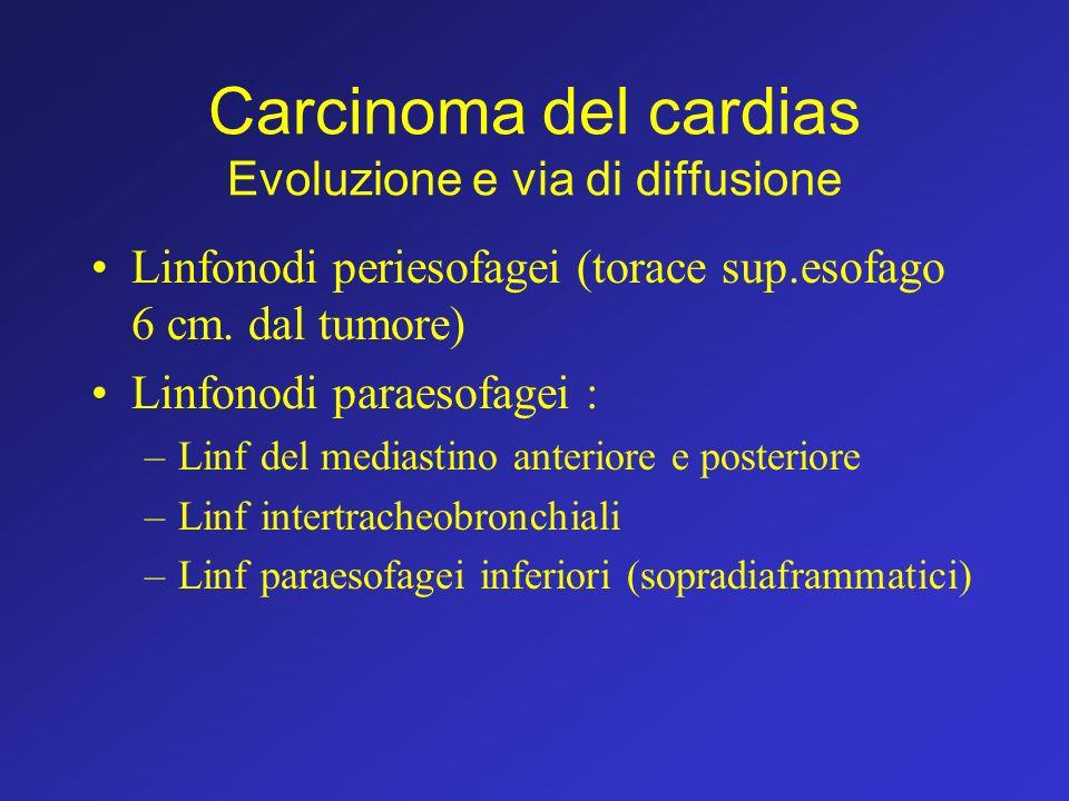 Carcinoma del cardias Evoluzione e via di diffusione Linfonodi periesofagei (torace sup.esofago 6 cm. dal tumore) Linfonodi paraesofagei : –Linf del m