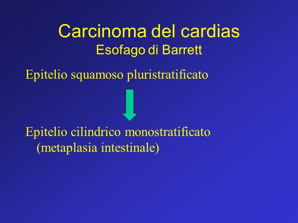 Carcinoma del cardias Esofago di Barrett Epitelio squamoso pluristratificato Epitelio cilindrico monostratificato (metaplasia intestinale)