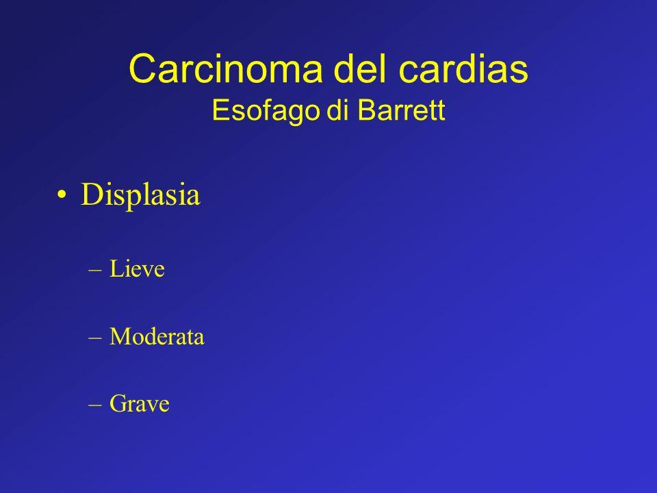 Carcinoma del cardias Esofago di Barrett Displasia –Lieve –Moderata –Grave