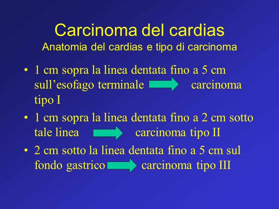 Carcinoma del cardias Anatomia del cardias e tipo di carcinoma 1 cm sopra la linea dentata fino a 5 cm sullesofago terminalecarcinoma tipo I 1 cm sopr