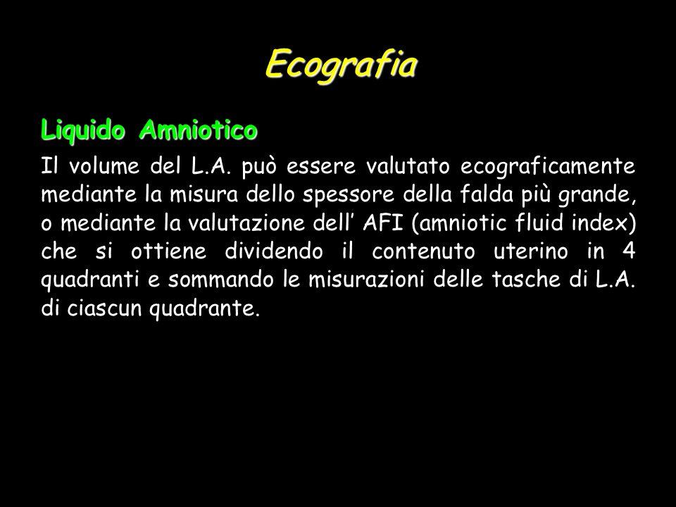 Ecografia Liquido Amniotico Il volume del L.A. può essere valutato ecograficamente mediante la misura dello spessore della falda più grande, o mediant