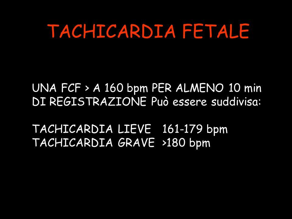 TACHICARDIA FETALE UNA FCF > A 160 bpm PER ALMENO 10 min DI REGISTRAZIONE Può essere suddivisa: TACHICARDIA LIEVE 161-179 bpm TACHICARDIA GRAVE >180 b