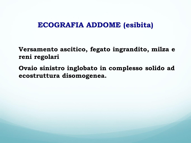 ECOGRAFIA ADDOME (esibita) Versamento ascitico, fegato ingrandito, milza e reni regolari Ovaio sinistro inglobato in complesso solido ad ecostruttura