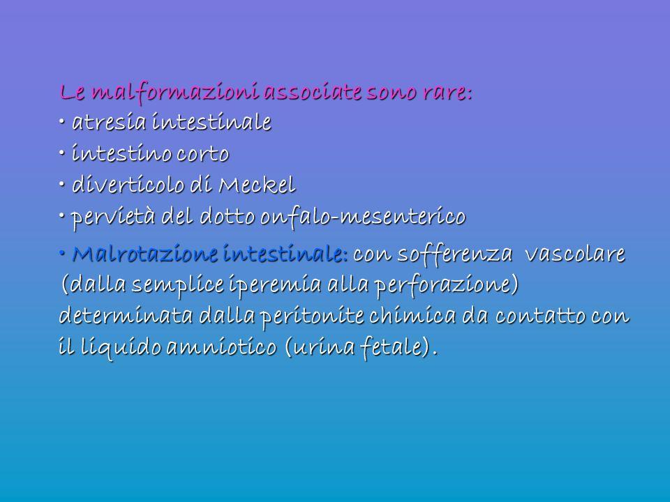 Le malformazioni associate sono rare: atresia intestinale atresia intestinale intestino corto intestino corto diverticolo di Meckel diverticolo di Mec
