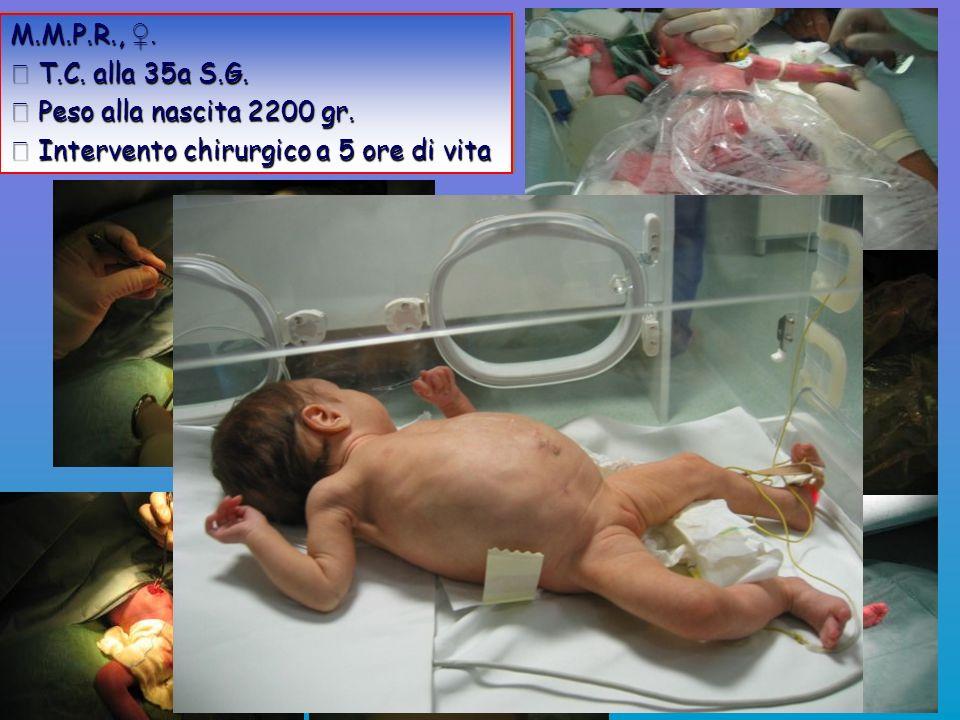 M.M.P.R.,. T.C. alla 35a S.G. T.C. alla 35a S.G. Peso alla nascita 2200 gr. Peso alla nascita 2200 gr. Intervento chirurgico a 5 ore di vita Intervent