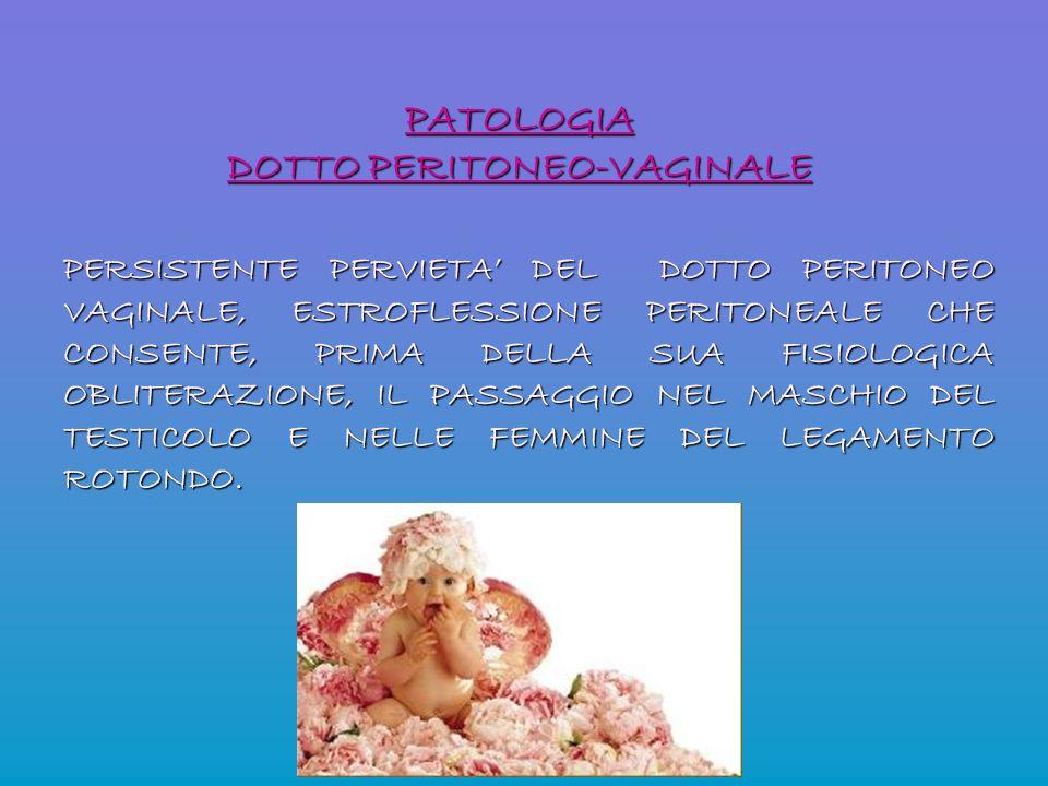 PATOLOGIA DOTTO PERITONEO-VAGINALE PERSISTENTE PERVIETA DEL DOTTO PERITONEO VAGINALE, ESTROFLESSIONE PERITONEALE CHE CONSENTE, PRIMA DELLA SUA FISIOLO