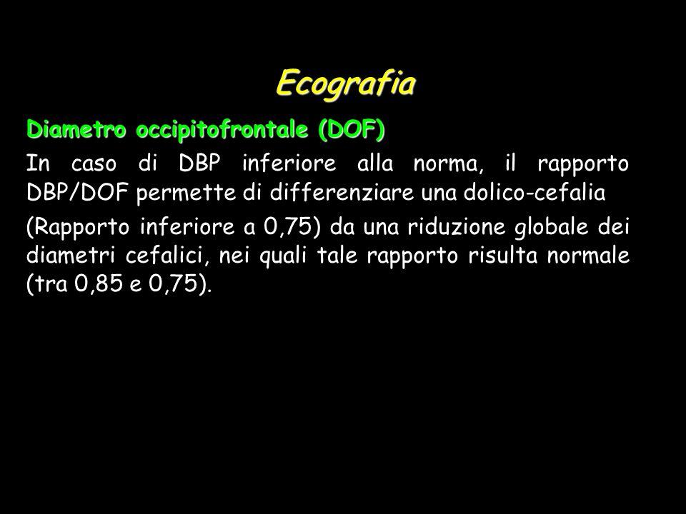 Ecografia Diametro occipitofrontale (DOF) In caso di DBP inferiore alla norma, il rapporto DBP/DOF permette di differenziare una dolico-cefalia (Rappo