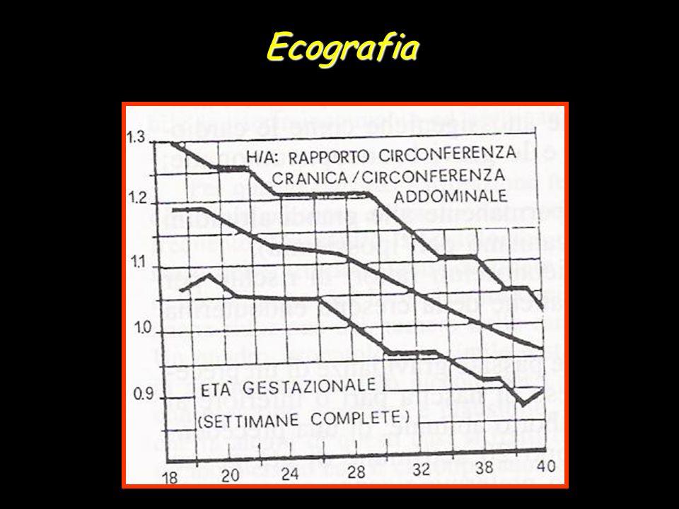 Ecografia
