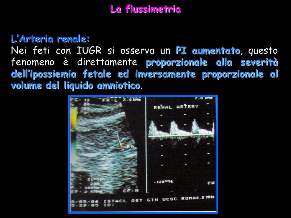 LArteria renale: PI aumentato proporzionale alla severità dellipossiemia fetale ed inversamente proporzionale al volume del liquido amniotico Nei feti