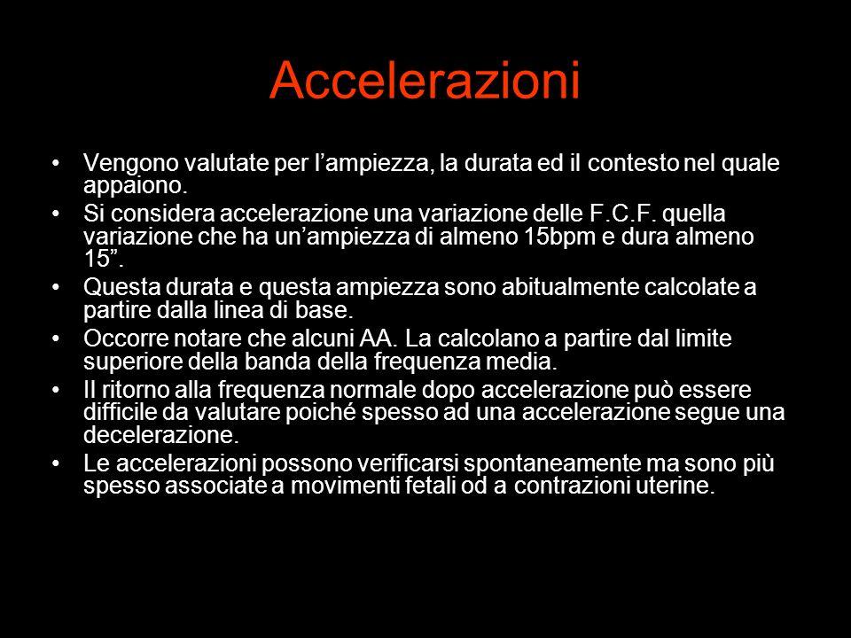 Accelerazioni Vengono valutate per lampiezza, la durata ed il contesto nel quale appaiono. Si considera accelerazione una variazione delle F.C.F. quel