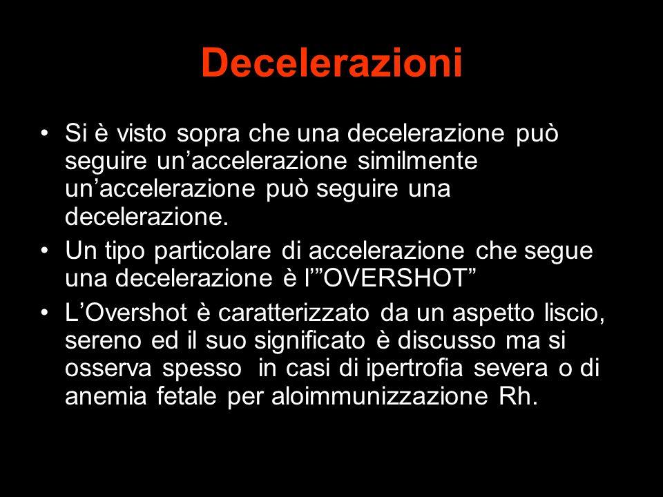 Decelerazioni Si è visto sopra che una decelerazione può seguire unaccelerazione similmente unaccelerazione può seguire una decelerazione. Un tipo par