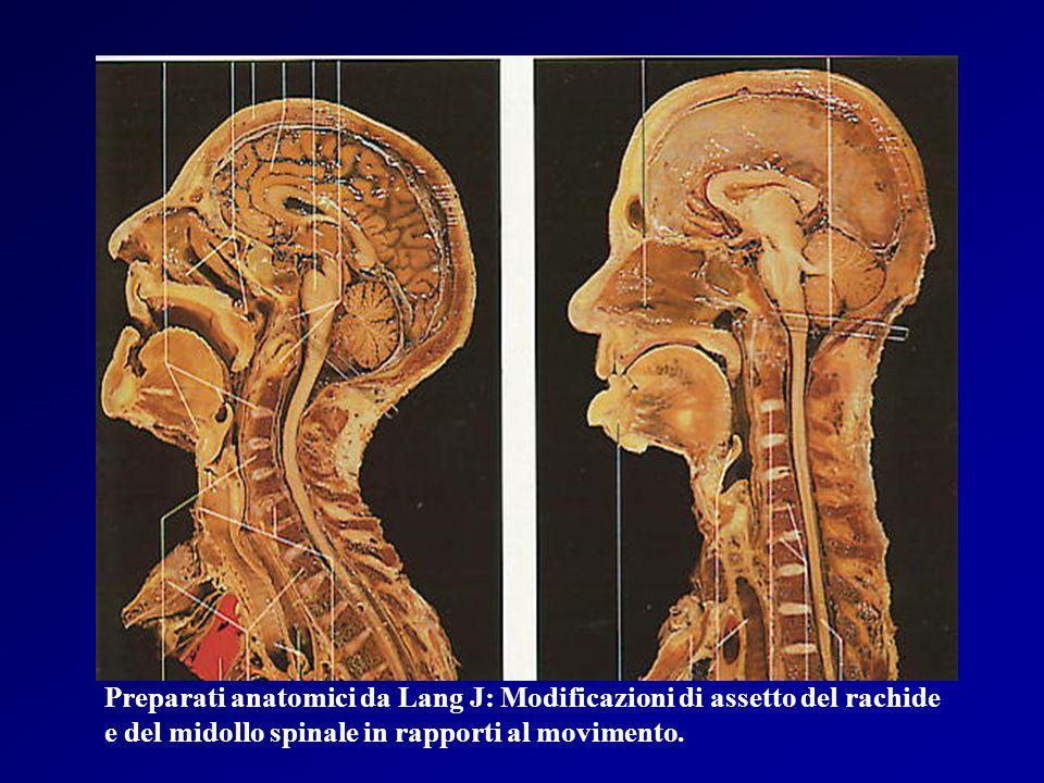 PATOLOGIA DEGENERATIVA DEL RACHIDE CERVICALE Patogenesi Disidratazione del disco intervertebrale Riduzione dellaltezza dello spazio intersomatico Proliferazione reattiva e calcificazione dei tessuti molli (anulus, legamenti, capsule articolari) Formazione di osteofiti Alterazioni della biomeccanica del rachide