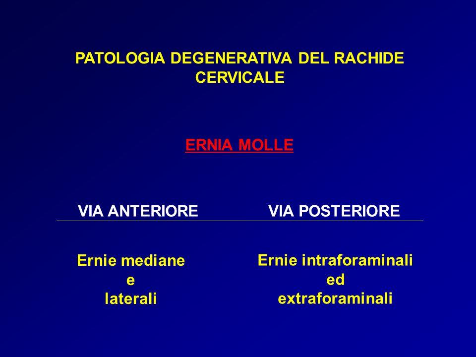 PATOLOGIA DEGENERATIVA DEL RACHIDE CERVICALE ERNIA MOLLE VIA ANTERIOREVIA POSTERIORE Ernie mediane e laterali Ernie intraforaminali ed extraforaminali