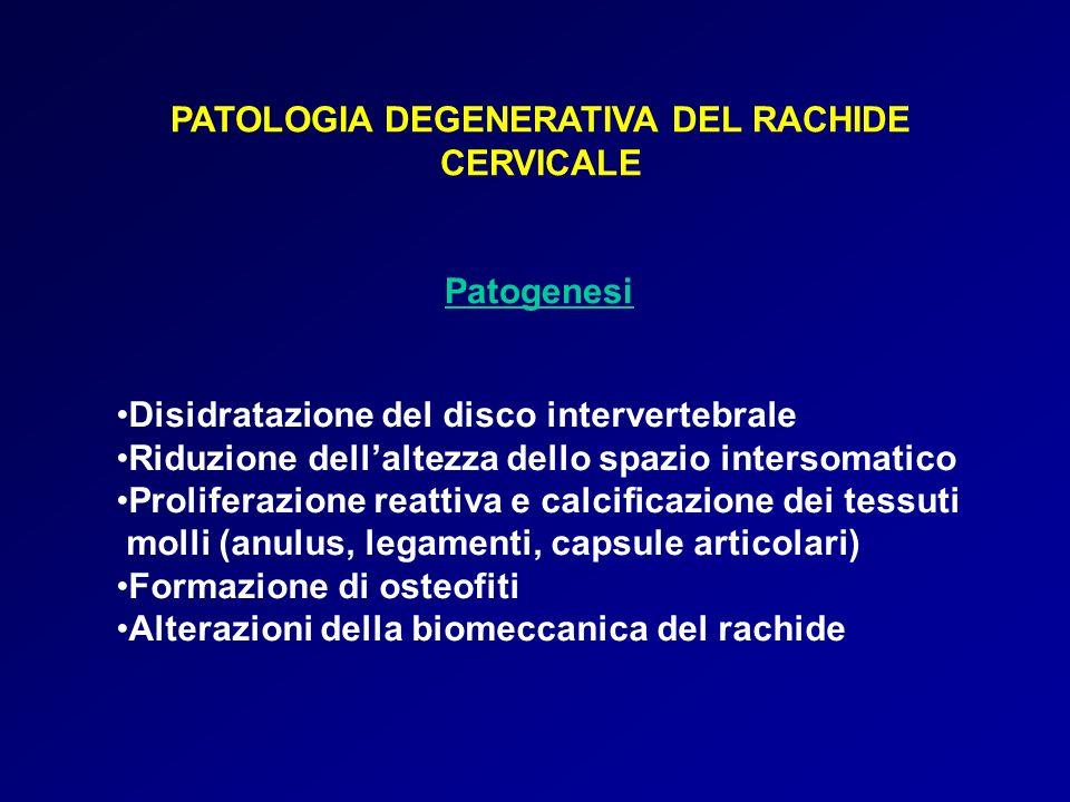 PATOLOGIA DEGENERATIVA DEL RACHIDE CERVICALE Patogenesi Disidratazione del disco intervertebrale Riduzione dellaltezza dello spazio intersomatico Prol