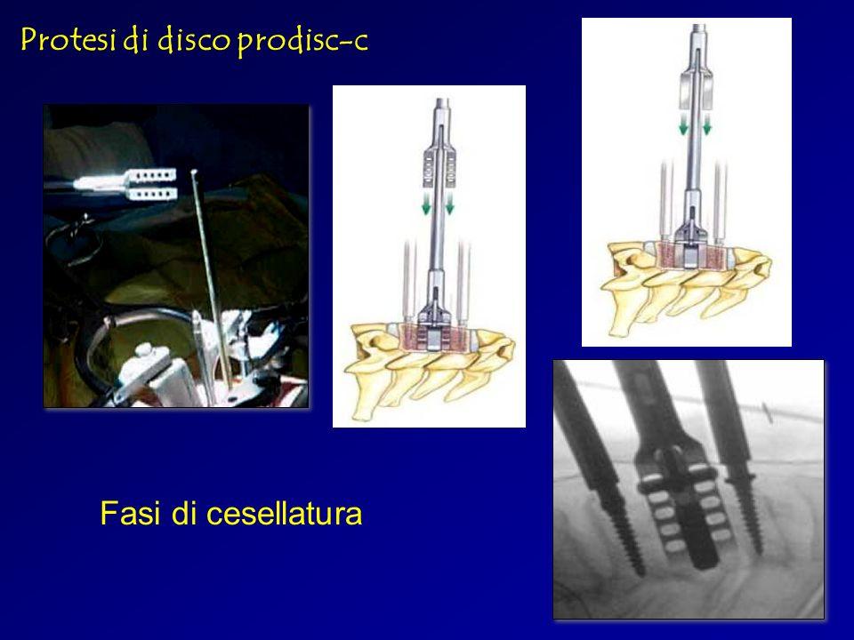 Protesi di disco prodisc-c Fasi di cesellatura