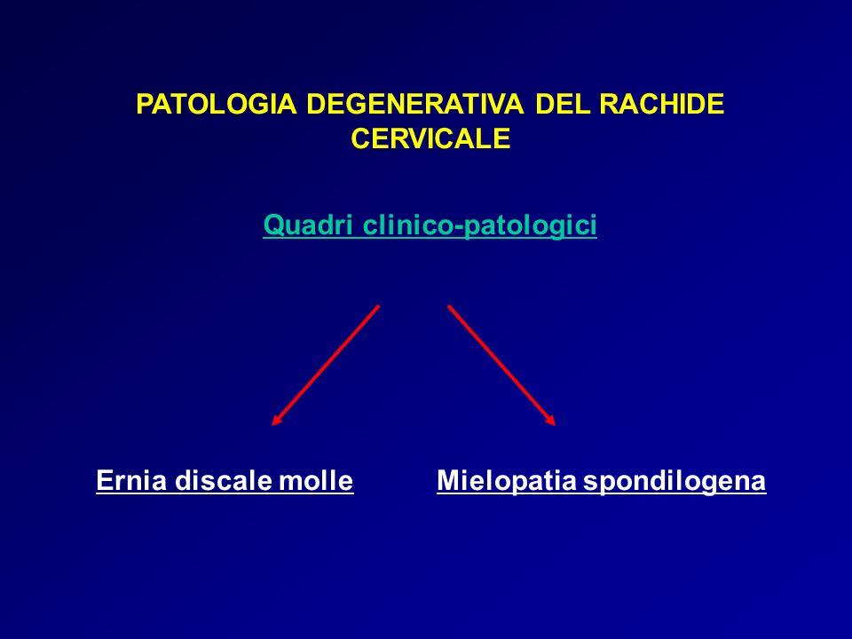 PATOLOGIA DEGENERATIVA DEL RACHIDE LOMBOSACRALE Ernia molle Stenosi osteodiscartrosica Dolore, inizialmente spesso a sede lombare, con seguente estensione radicolare Parestesie e disestesie Ritenzione urinaria (L4-L5) Ipoelicitabilità o abolizione riflessi osteotendinei Deficit sensitivi a distribuzione radicolare Deficit motori a distribuzione radicolare Segni e Sintomi Dolore con distribuzione poliradicolare Parestesie e disestesie Faticabilità a carico degli arti inferiori durante la marcia Abolizione dei riflessi osteotendinei Deficit sensitivi e motori a distribuzione poliradico lare; disturbi sfinterici