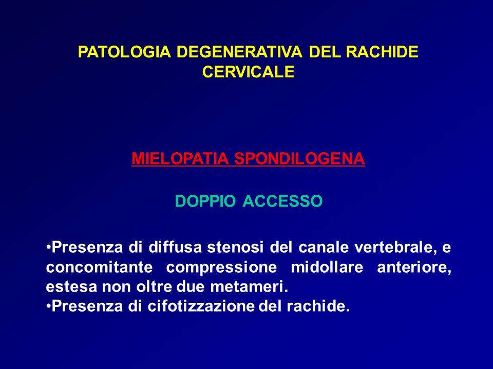 PATOLOGIA DEGENERATIVA DEL RACHIDE CERVICALE MIELOPATIA SPONDILOGENA DOPPIO ACCESSO Presenza di diffusa stenosi del canale vertebrale, e concomitante