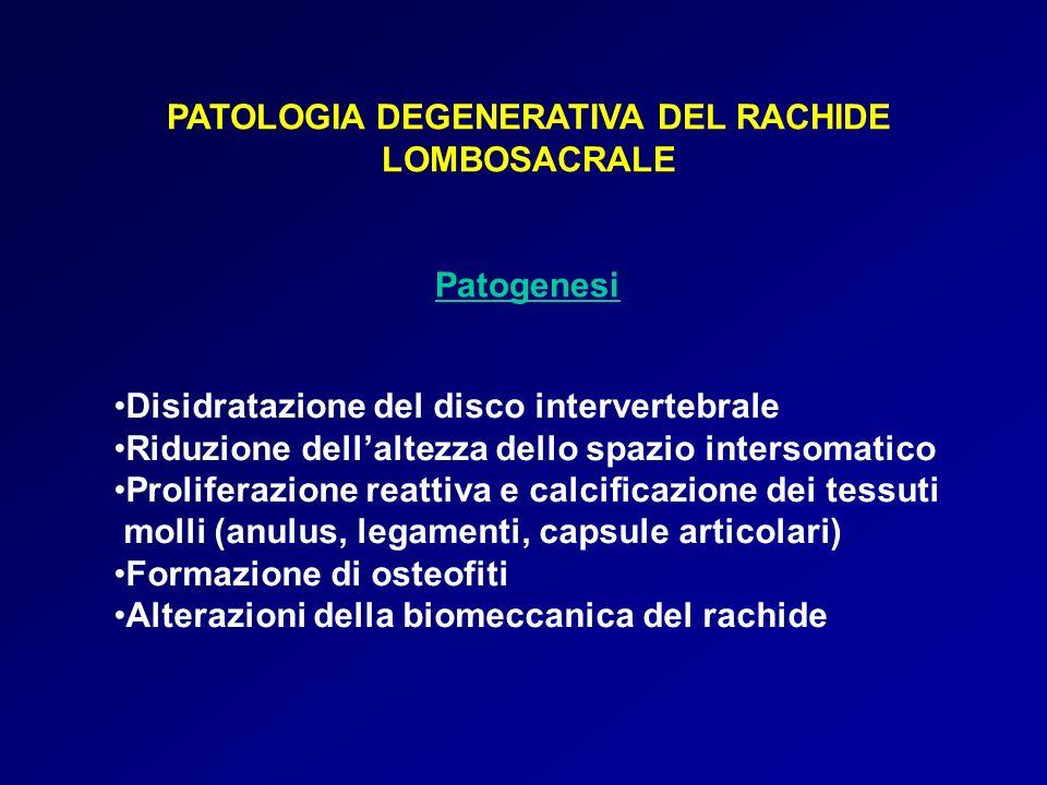 PATOLOGIA DEGENERATIVA DEL RACHIDE LOMBOSACRALE Patogenesi Disidratazione del disco intervertebrale Riduzione dellaltezza dello spazio intersomatico P
