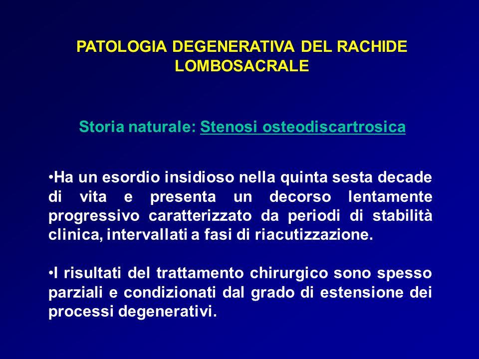 PATOLOGIA DEGENERATIVA DEL RACHIDE LOMBOSACRALE Storia naturale: Stenosi osteodiscartrosica Ha un esordio insidioso nella quinta sesta decade di vita